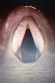 Endoskopie Kehlkopf