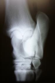 Röntgen Sprunggelenk